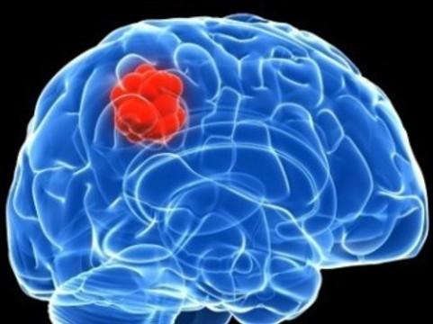 Ученые преобразовали злокачественную опухоль [в доброкачественную]