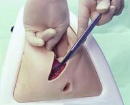 Последствия эпизиотомии хуже, чем последствия разрывов в родах