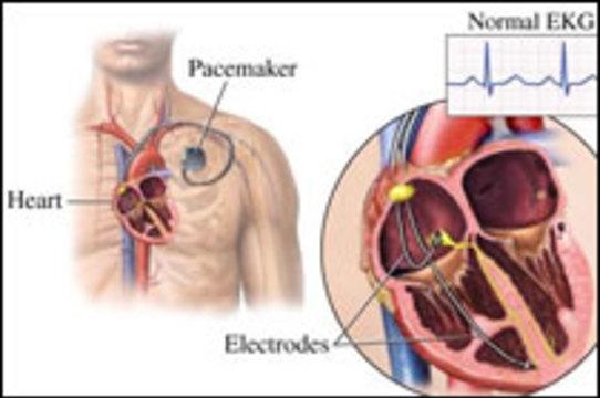 Пациентам с кардиостимуляторами [разрешили пользоваться iPod'ами]