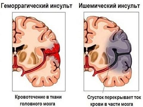 ВЦИОМ выяснил, что россияне знают об инсульте