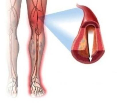 Атеросклероз сосудов конечностей [предложили лечить переносом двух генов]