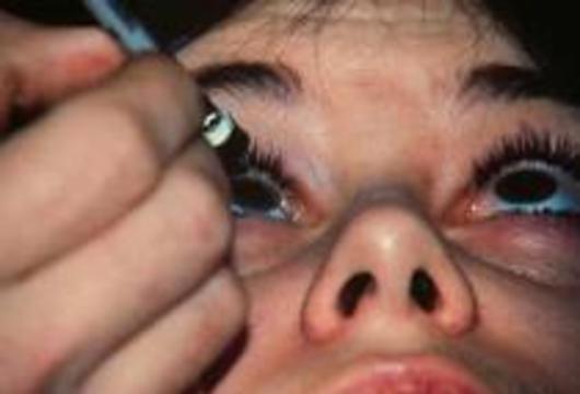 Косметологи случайно обнаружили средство для лечения мигрени