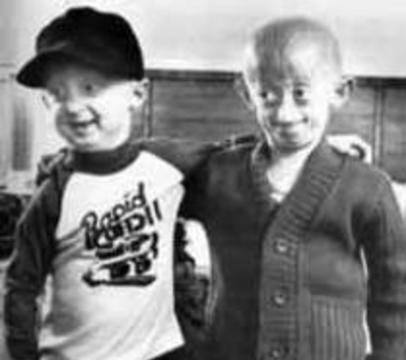 Обнаружена мутация, превращающая детей в стариков