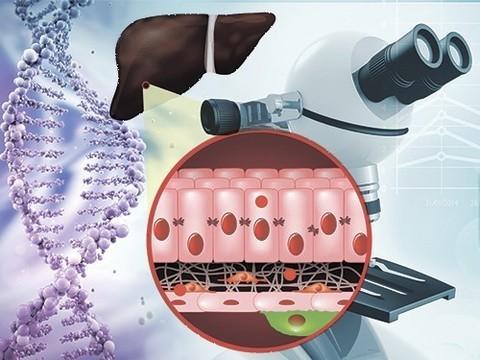 Идентифицирован белок, запускающий процесс фиброза печени