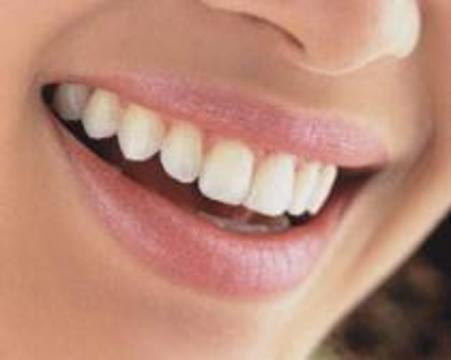 Количество будущих дырок в зубах можно предсказать по слюне