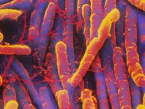 Штаммы патогенных бактерий предложили различать [по запаху фекалий]