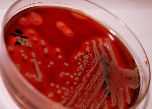 Против супермикробов [найден суперантибиотик]