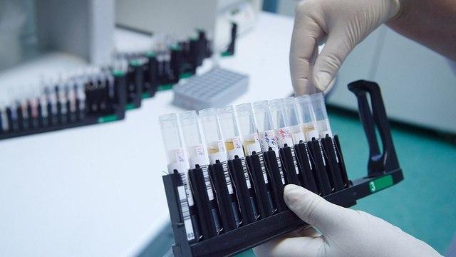 Москвичей призвали сдать бесплатный тест на наличие антител к коронавирусу