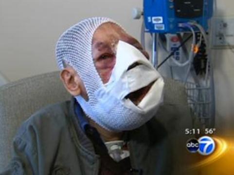 Американские хирурги удалили с лица португальца [5,5 килограммов опухолей]