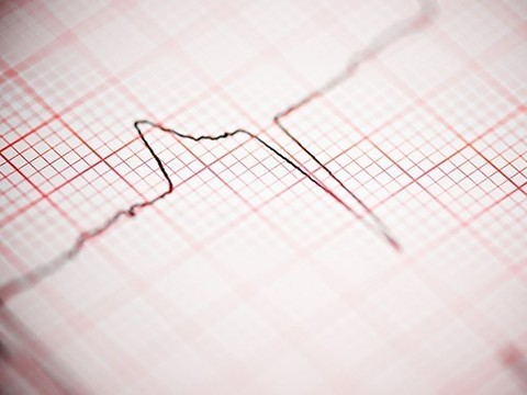 Внезапная остановка сердца не всегда внезапна