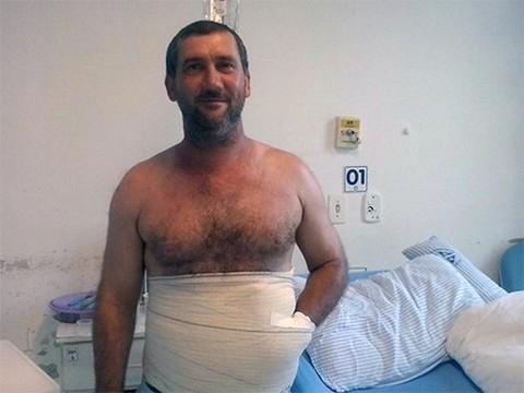 Бразильские врачи спасли руку пациента от ампутации, вшив ее в живот