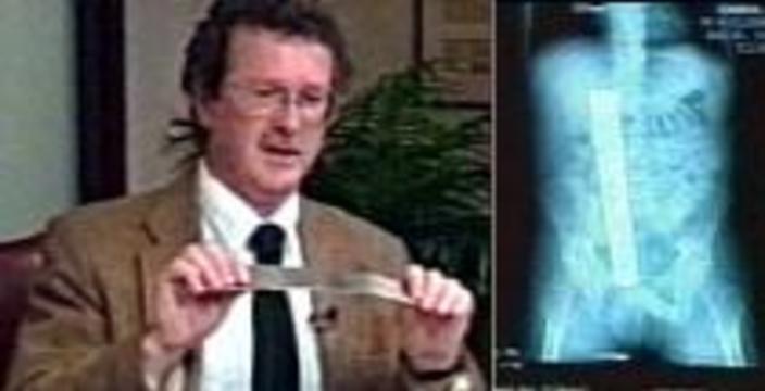 В животе у пациента хирурги забыли 32-сантиметровый инструмент