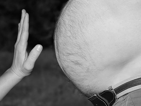 Большая жировая масса тела резко увеличивает риск смерти после операции на сердце