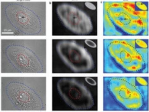 Новый метод микроскопии [показал внутриклеточные процессы в реальном времени]