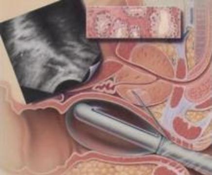 Генная терапия поможет вылечить рак