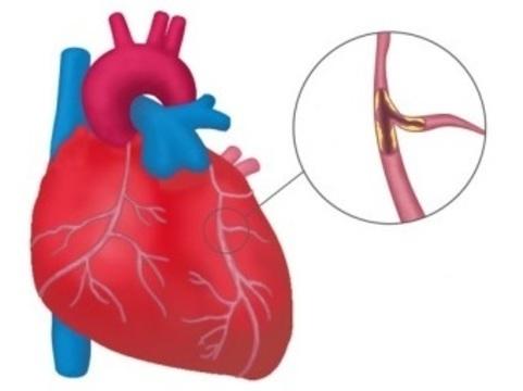 Назальный спрей с антителами [поможет предотвратить инфаркт миокарда]