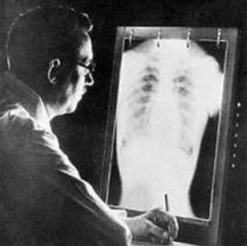 Джордж Сорос дает еще полтора миллиона долларов на борьбу с туберкулезом в России