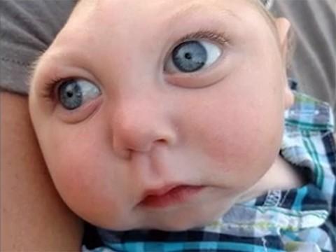 Микрогидранэнцефалия: мальчик, который выжил