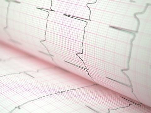 Фонд «Здоровье»: рост смертности россиян связан со снижением доступности медпомощи
