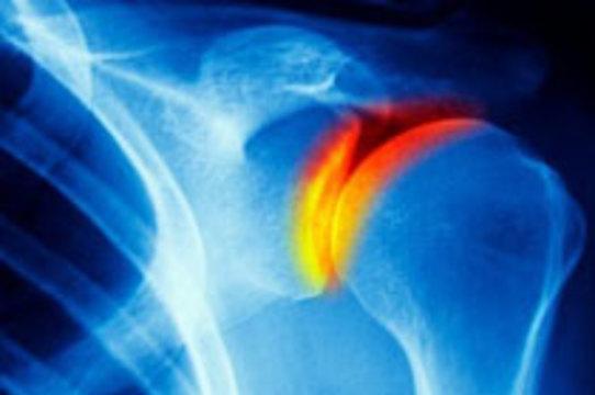Итальянские хирурги пересадили пациенту [плечевой сустав]