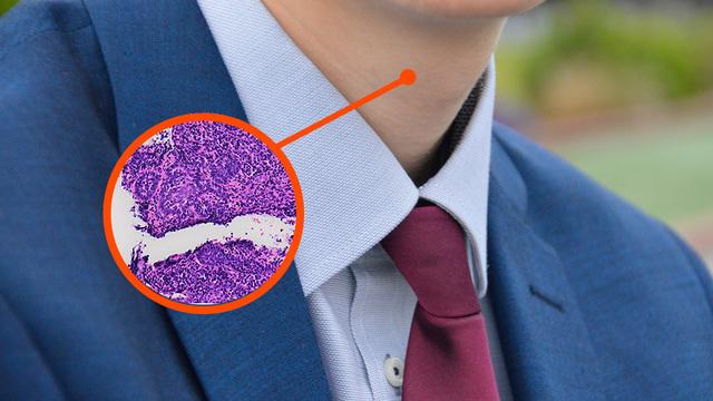 Новаторский тест на ВПЧ помог диагностировать рак горла у мужчины