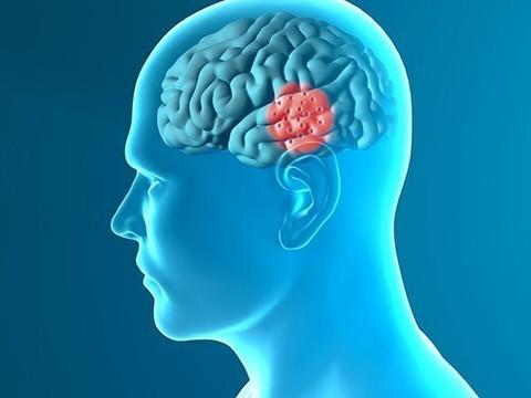 FDA одобрило мозговой стимулятор для пациентов с болезнью Паркинсона