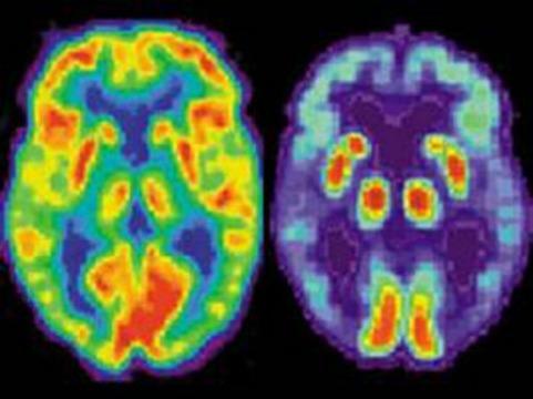 Биомаркеры болезни Альцгеймера проявляются [за 20 лет до первых симптомов]