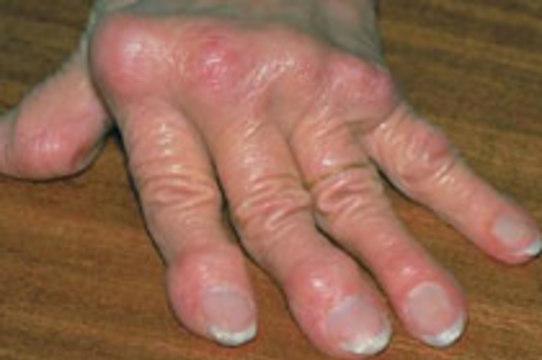 Ревматоидный артрит будут [лечить клетками крови пациента]