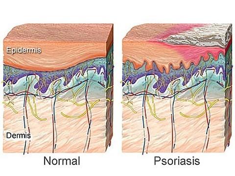 Псориаз увеличивает риск развития аневризмы