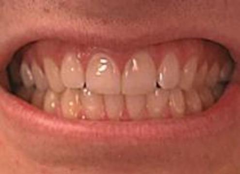 Десять зубов оценили в 85 тысяч английских фунтов