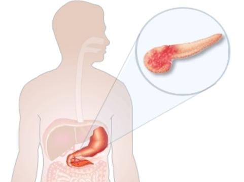 Рак поджелудочной железы [скрыто развивается в течение десятилетий]