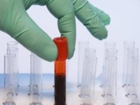 Выявлены [новые системы групп крови]