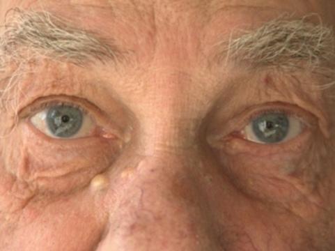 Раннюю диагностику болезни Альцгеймера [будут проводить по глазам]