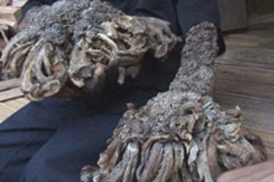 Индонезийский человек-дерево [возвращается к нормальной жизни после операции]
