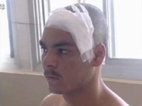 Бразилец прожил [три года с ножом в голове]