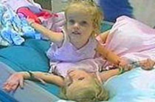 В США завершилась 16-часовая [операция по разделению сиамских близнецов]