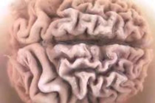 Японские ученые совершили прорыв в лечении болезни Альцгеймера