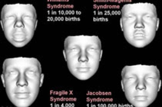 3D-изображения лица позволяют выявить [редкие генетические заболевания]